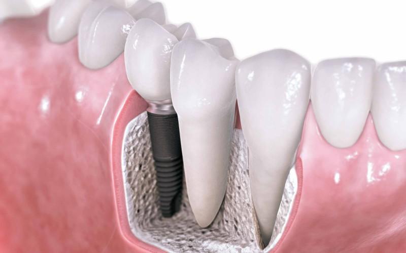 Fogbeültetés, fogászati implantátum