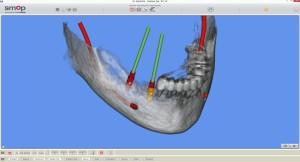 Tervezés alatt két implantátum az alsó állkapocsban