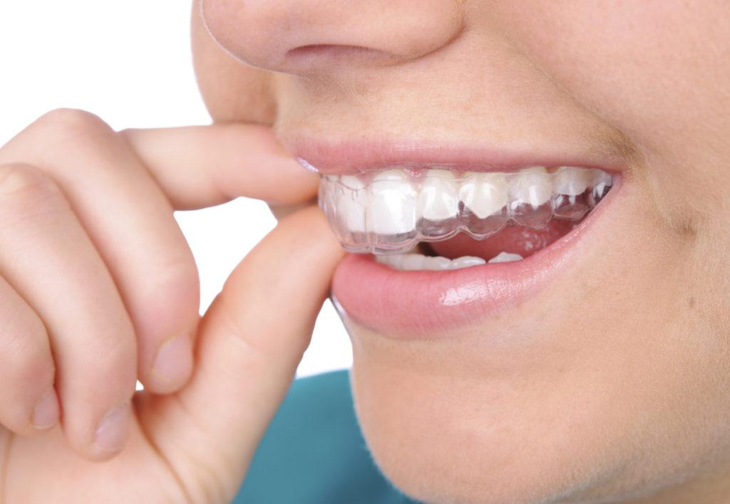 Láthatatlan fogszabályzó