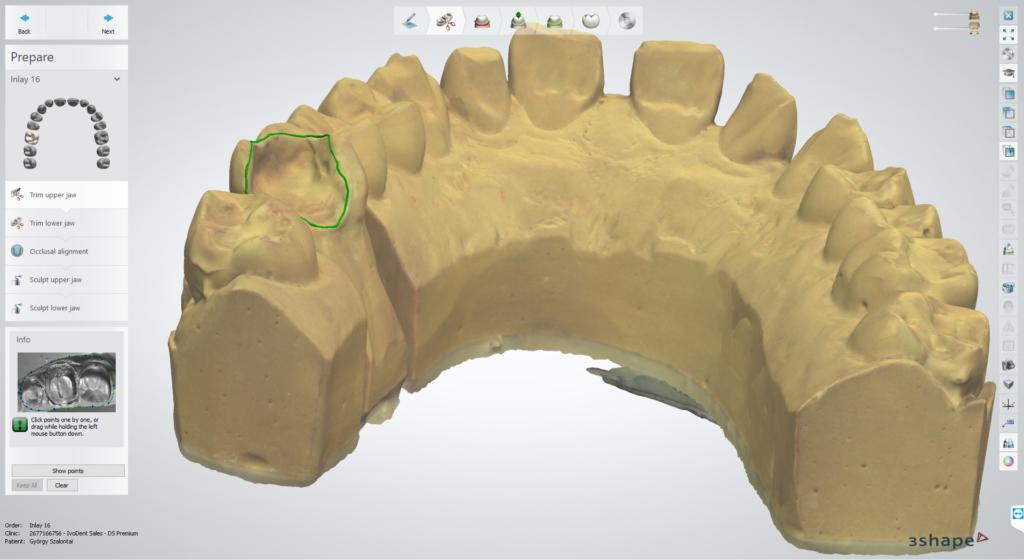 3D CAD/CAM technika
